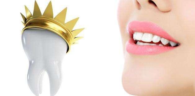 健康口腔烤瓷牙给你帮忙 做烤瓷牙多少钱