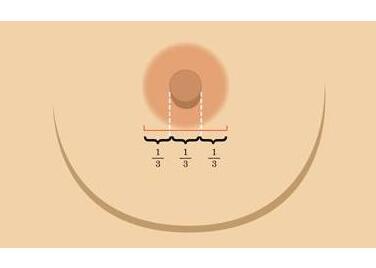 乳头内陷矫正后是否会影响哺乳  恢复年轻的挺翘