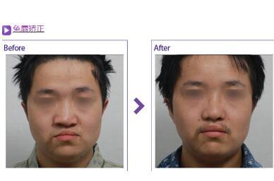 唇裂修复一次效果怎么样  修复畸形恢复自信