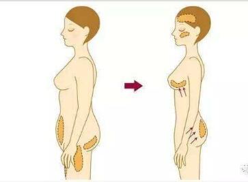 """自体脂肪丰胸多久能恢复自然  让你拥有傲人""""事业线"""""""