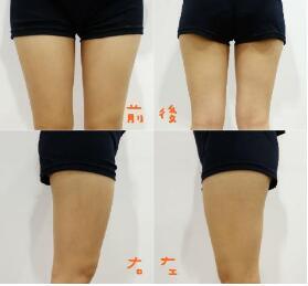 """腿部吸脂的效果能保持多久  吸脂一次终生享""""瘦"""""""