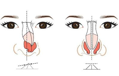 """歪鼻矫正效果怎么样呢  完美女人的""""鼻""""修之课"""