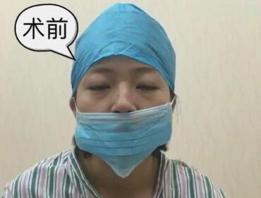 歪鼻矫正手术安全吗  助你摆脱自卑