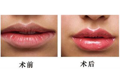 漂唇手术相关怎么样  你想要的唇型我都有