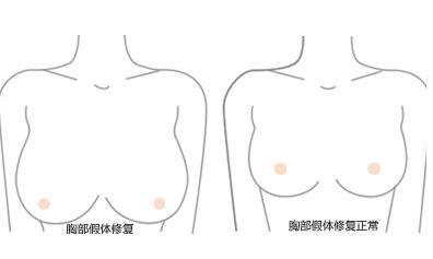 """假体隆胸修复手术优点有哪些  从此不做""""飞机场"""""""