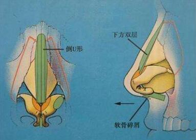 自体软骨隆鼻是怎么操作的啊  有没有后遗症呢