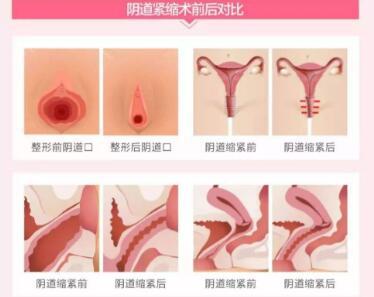 阴道紧缩术影响生育吗  让你阴道不再松弛重回18岁