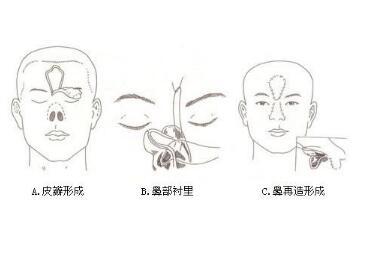 鼻部再造是怎么样做的呢  让你焕然一新