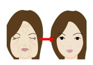 电波拉皮除皱会不会反弹呢  可以让你变得更加年轻