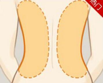背部吸脂减肥术安全吗  让你背部婀娜更迷人