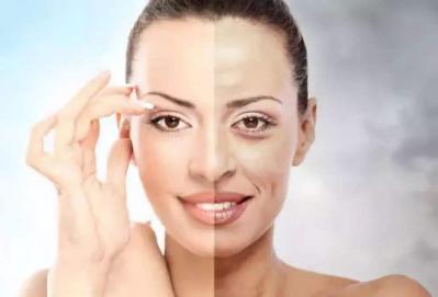 提升面部皮肤的好方法 彩光嫩肤和光子嫩肤有什么区别