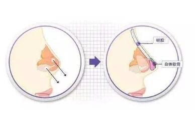 假体隆鼻修复术使用哪种材料比较好呢  术后美丽无忧