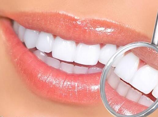 怎么样美白牙齿 冷光美白牙齿效果怎么样