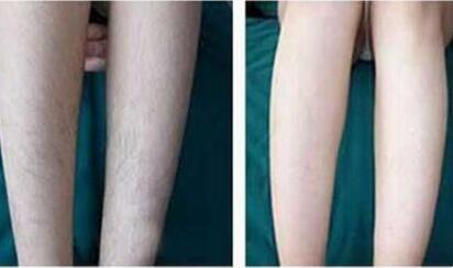 激光腿部脱毛的效果怎么样  拒绝脏乱腿毛