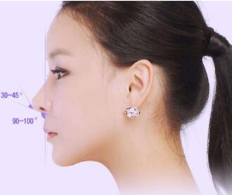 胶原蛋白隆鼻效果怎么样  告别短小塌塌鼻