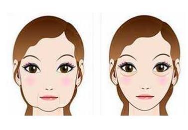 肉毒素去除嘴角纹有哪些优势呢  让你恢复年轻自信笑容