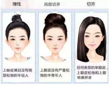 韩式双眼皮的优势有哪些  造就魅惑大眼