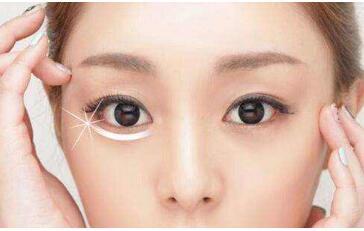 吸脂去眼袋手术会产生疤痕吗  别让你的眼袋暴露年龄秘密