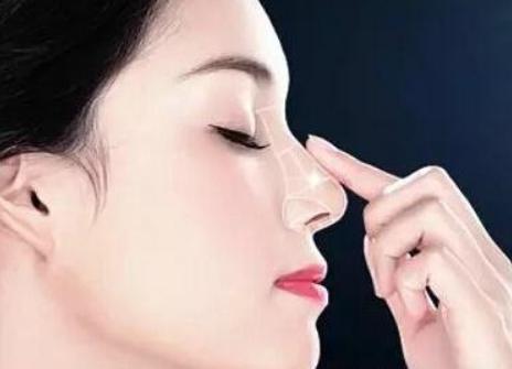 自体脂肪隆鼻效果如何 价格是多少