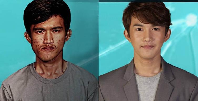 22岁泰国工人Noppajit赴韩整容 几乎判若两人亲妈认不出