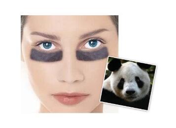 你还在为了自己的熊猫眼烦恼吗  激光去黑眼圈治疗彻底吗
