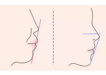 地包天牙齿矫正的年龄是几岁  矫正牙齿要趁早