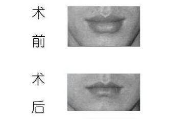 厚唇改薄术的效果怎么样  告别厚厚香肠嘴