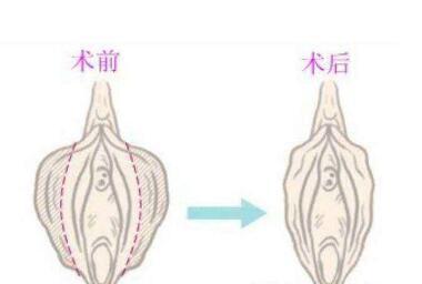 阴唇肥大矫正手术有什么优点呢  绽放女性私处美