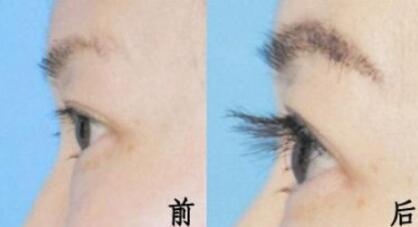 种植眉毛需要注意哪些细节呢  不损伤毛囊自然持久美观