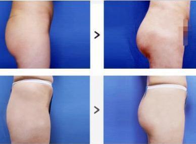 臀部吸脂手术后多久能恢复呢  吸出你的小翘臀