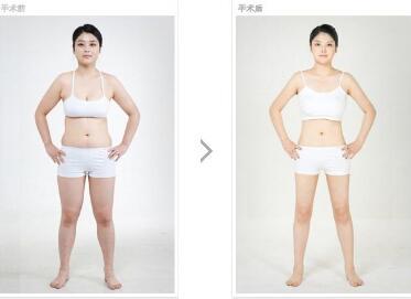 全身吸脂为什么不会反弹呢  不胖的才是女神