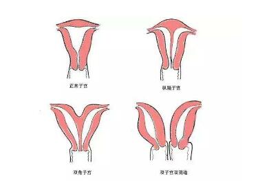 哪些人适合阴道再造呢  让你做一个正常的女人