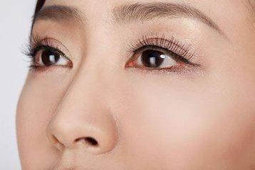 把握最佳双眼皮修复时机 掌控属于自身的美丽