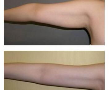 手臂吸脂有哪些好处呢  快速瘦身不反弹