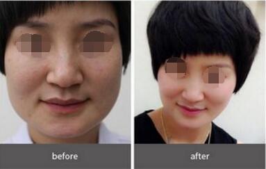 下颌角磨骨手术的优势有哪些  磨掉难看宽下巴