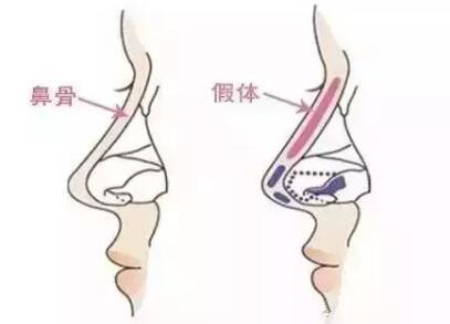 假体隆鼻手术有哪些特点呢  塌鼻子的你值得拥有