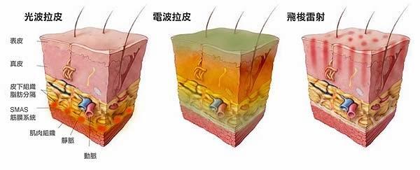 电波拉皮除皱效果怎么样呢 电波拉皮面部提拉除皱神效