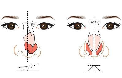 歪鼻矫正手术后鼻子还会变歪吗  让你拥有挺拔鼻梁