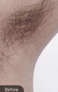 腋下冰点脱毛避免夏天小尴尬 永久脱毛值得信赖