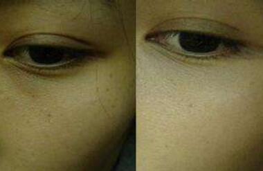 激光去黑眼圈术后护理是怎么样的  黑眼圈终结者