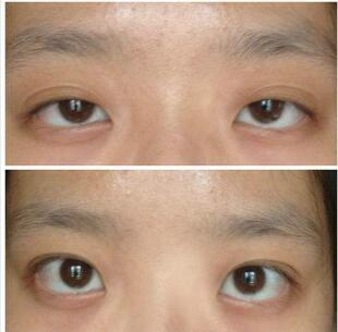 上眼睑下垂矫正术的效果好吗  重获迷人大眼
