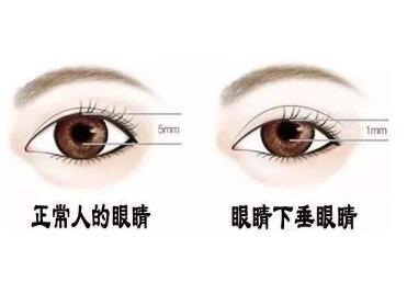 上眼睑下垂手术效果怎么样  让你睁大眼睛看世界