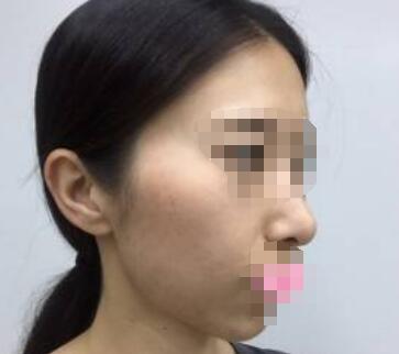面部提升术皮肤稚嫩 年轻活力不再老弱无力