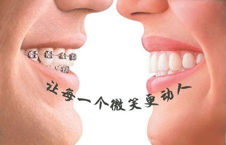 牙齿整形医院做<font color=red>地包天矫正</font>价格是多少
