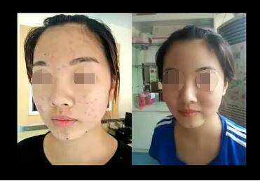 像素激光祛痘手术需要多长时间  安全无痛告别满脸痘痘