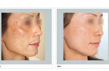 激光祛斑手术需要多少钱  激光祛斑会不会损伤皮肤呢