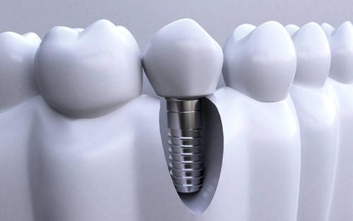 人工<font color=red>种植牙的优势</font>有哪些呢 人工种植牙存在哪些风险呢