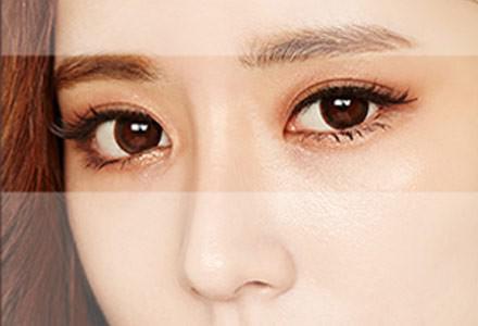 韩式埋线双眼皮的优势有哪些呢 眼部精雕 媚眼速成