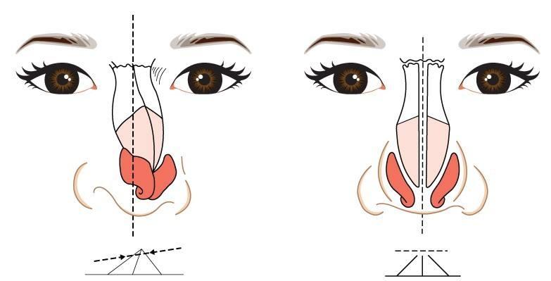 歪鼻矫正矫正畸形鼻 让鼻子不再一条路走到黑