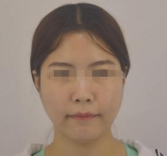 面部吸脂打造理想面容 让面部自带美眼滤镜